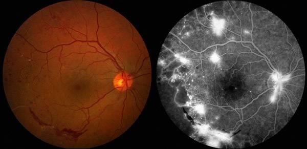 Ангиография глаза | лечение глаз
