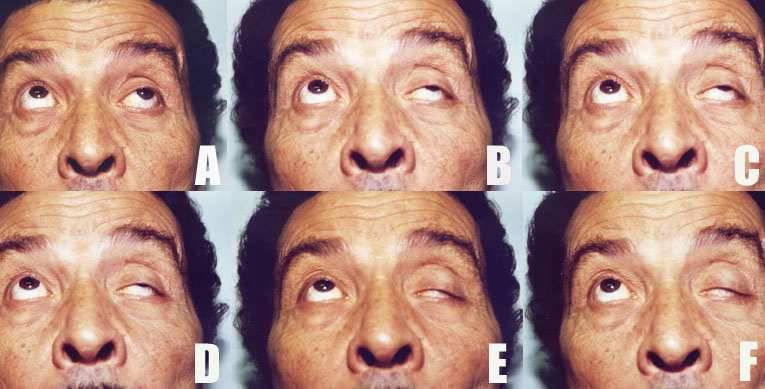 Миопатический синдром: причины, симптомы, диагностика