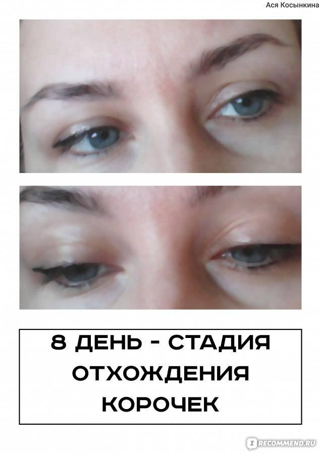 Заживление кожи после татуажа глаз: этапы по дням