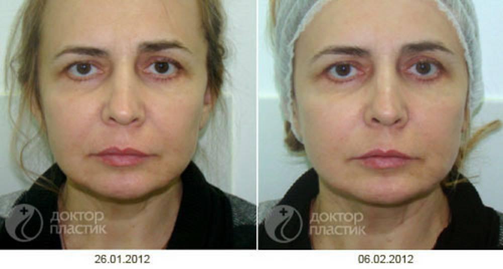 Макияж для асимметричных глаз. лицо несимметрично каждого человека! | макияж глаз