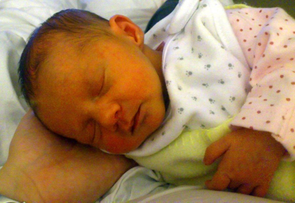 Желтые белки глаз у новорожденных и желтоватое лицо у ребенка