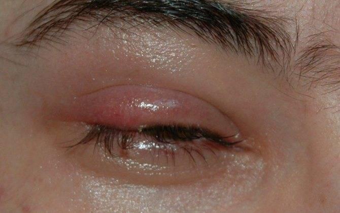 Болит глаз при моргании: возможные причины, что делать?