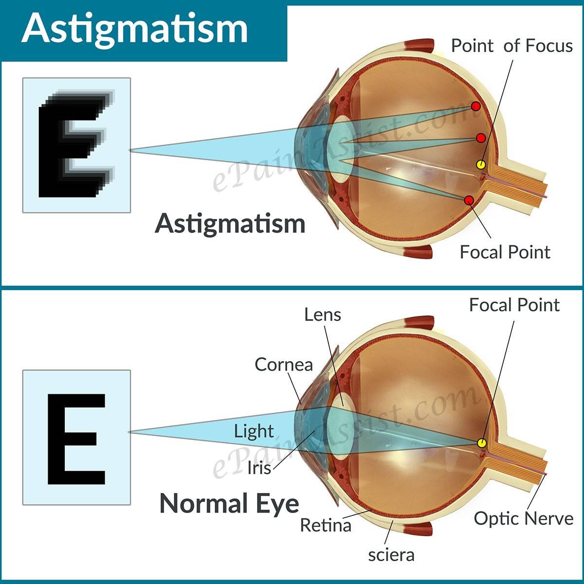 Астигматизм - признаки, симптомы, причины, диагностика и способы лечения заболевания