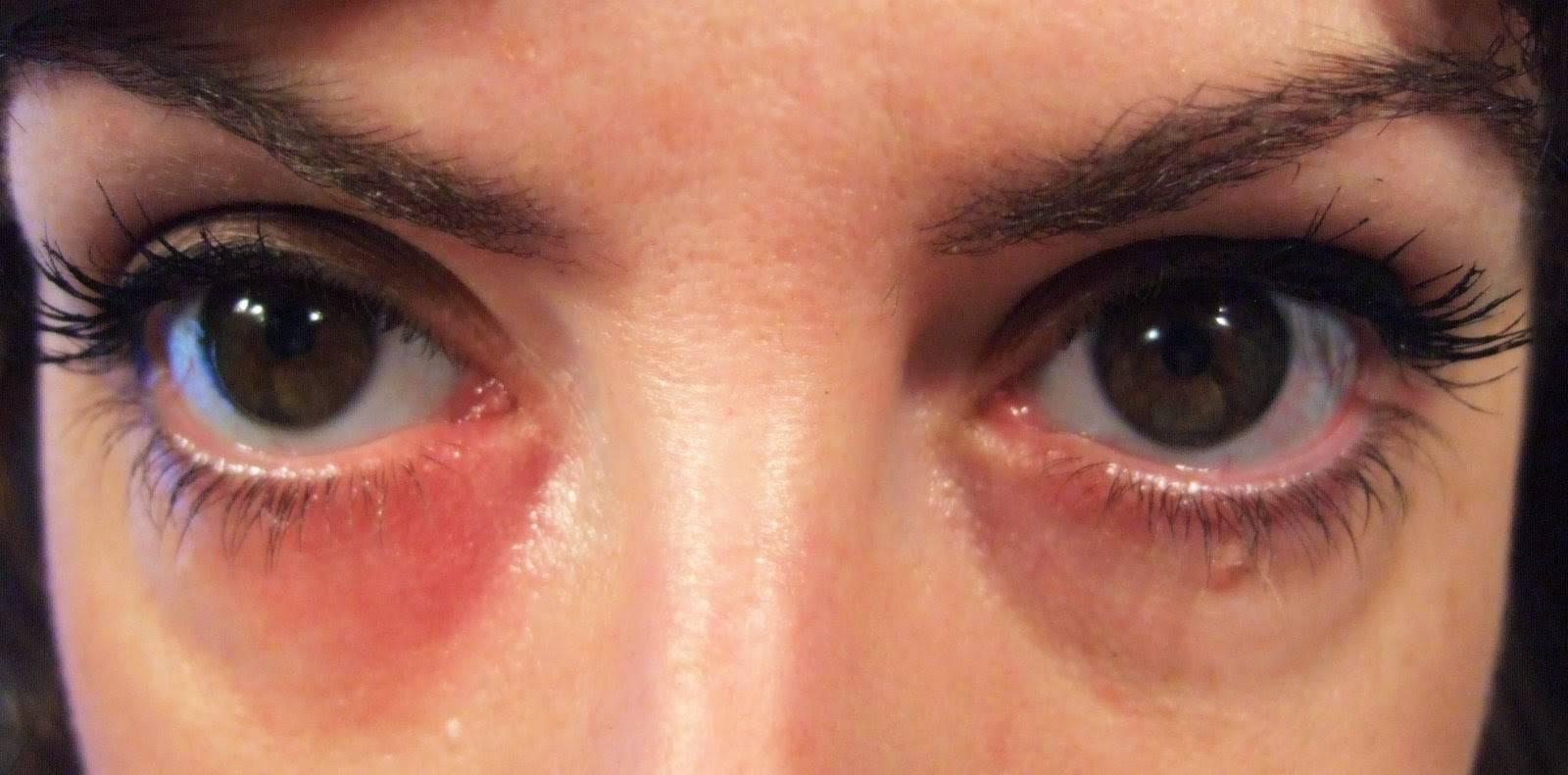 Красные пятна под глазами: причины, лечение, симптомы (точки шелушатся, чешутся, появляются после рвоты) у взрослых и детей