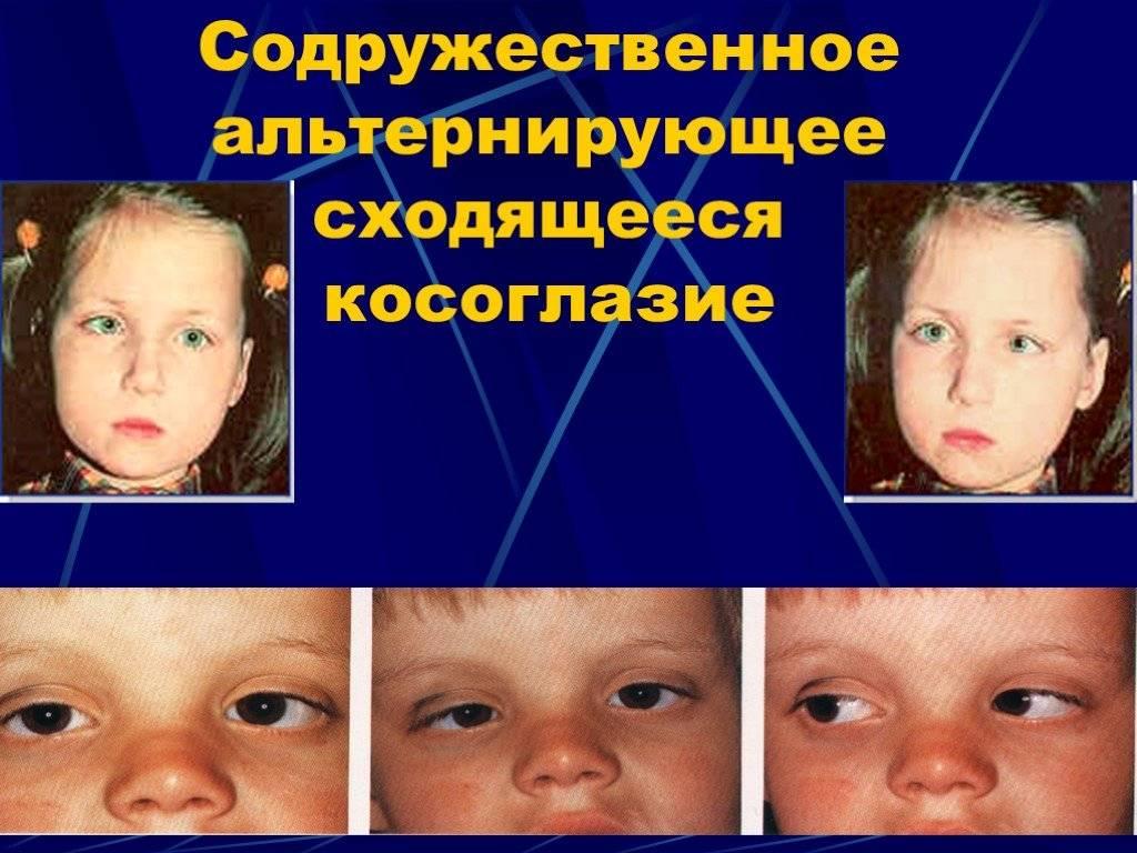 Аккомодационное косоглазие: причины, симптомы и методы лечения — глаза эксперт