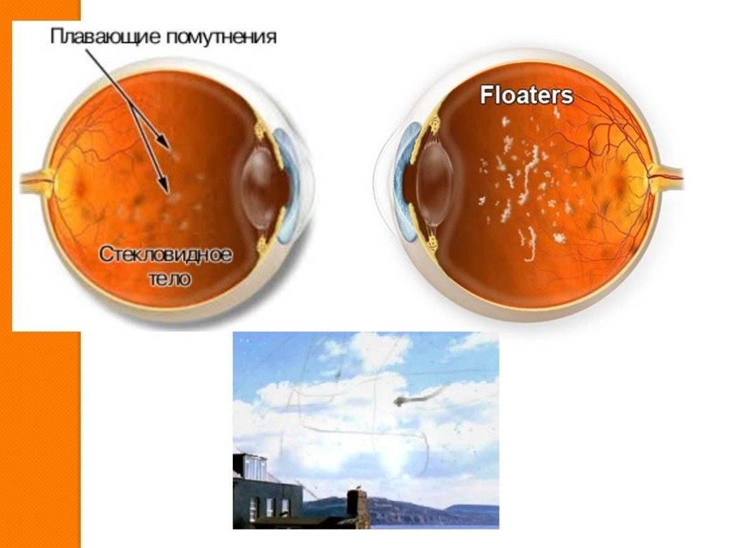 Стекловидное тело глаза - что такое плавающие помутнения