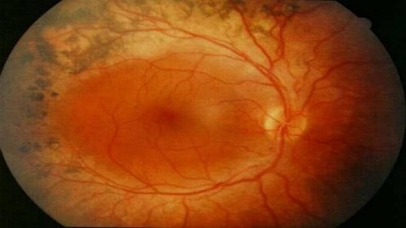 Дегенерация сетчатки глаза: что это такое, симптомы, причины, лечение oculistic.ru дегенерация сетчатки глаза: что это такое, симптомы, причины, лечение