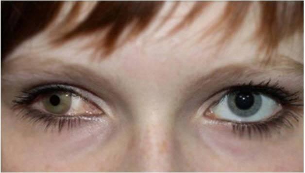 Эрозия роговицы глаза лечение последствия причины и симптомы