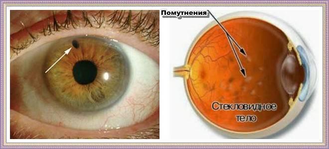 Помутнение стекловидного тела глаза