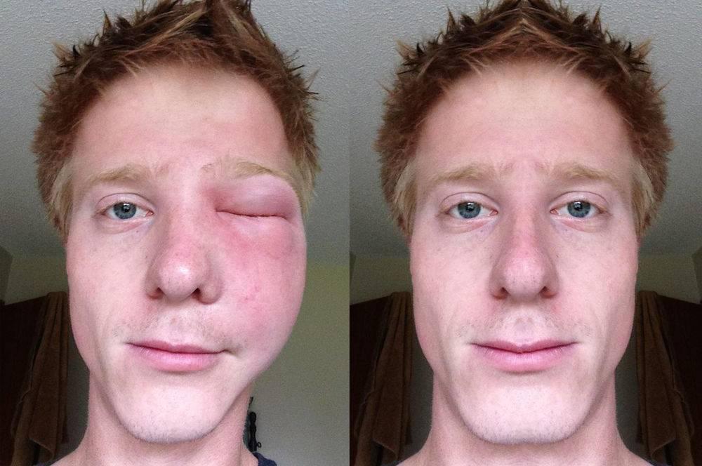 Аллергия на веках глаз лечение • аллергия и аллергические реакции