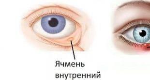 Как начинается ячмень на глазу: симптомы, причины, диагностика — глаза эксперт