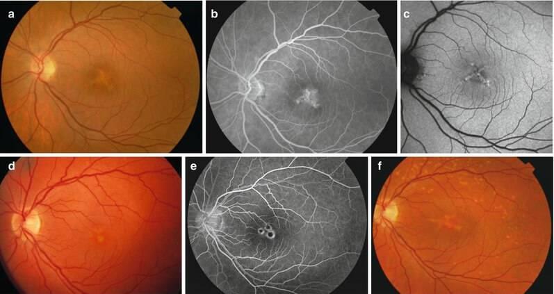 Анатомия сосудов глаза и распространенные заболевания