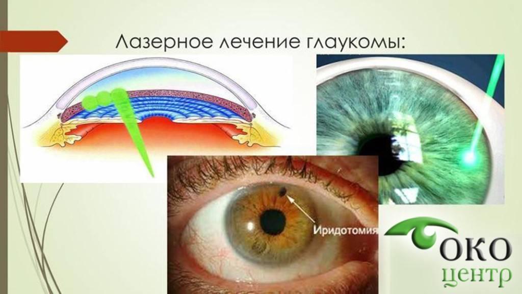 Селективная трабекулопластика при глаукоме