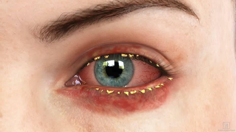 Хронический конъюктивит: причины, лечение, симптомы
