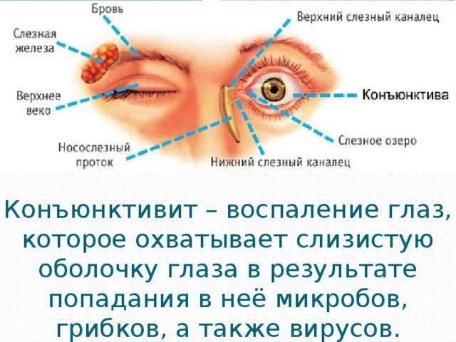 Гноятся глаза. причины, лечение и заболевания при которых бывают выделения гноя из глаз у детей и взрослых.