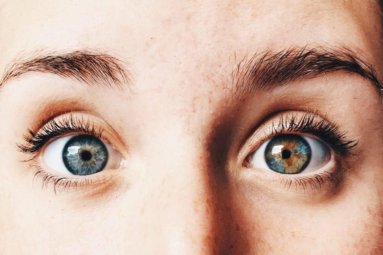 """Гетерохромия глаз: причины и классификация - """"здоровое око"""""""