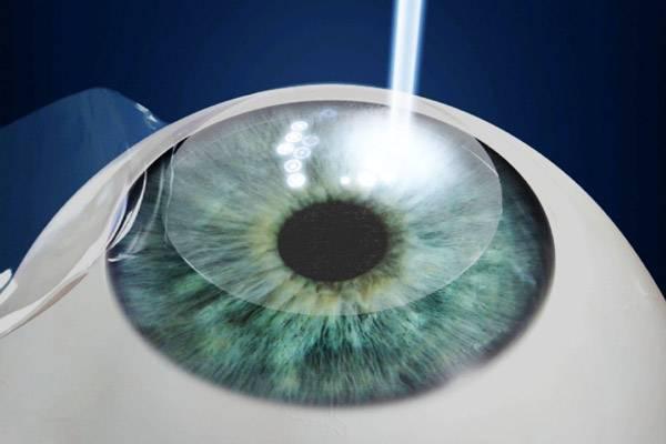 Операция для восстановления зрения ласик