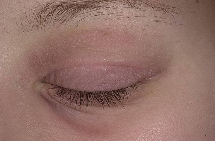 Симптомы и лечение дерматита век