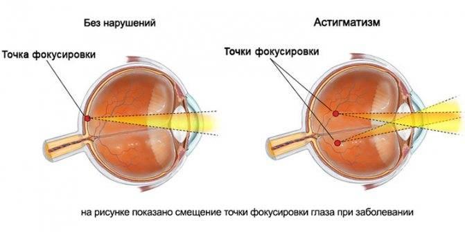 Сложный астигматизм: причины, симптомы, лечение, осложнения и профилактика