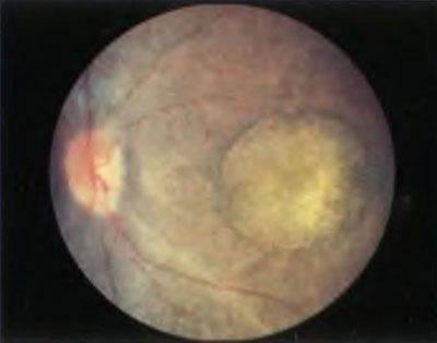 Амавроз лебера. причины. симптомы. диагностика. лечение | компетентно о здоровье на ilive