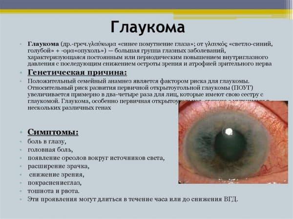 Противопоказания при глаукоме: держим зрение в порядке