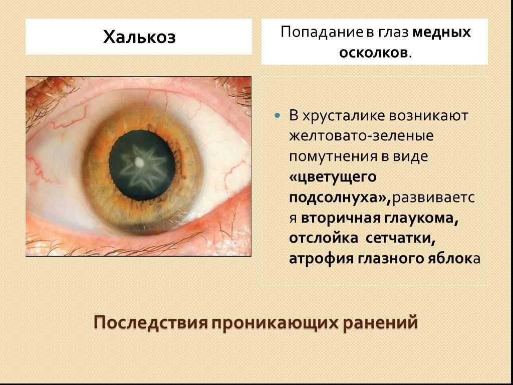 Травма глаза: виды, первая помощь, симптомы, лечение и последствия