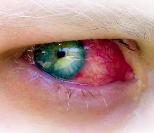 Болит и краснеет глаз от линз что делать