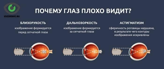 Зрение после травмы - вопрос офтальмологу - 03 онлайн