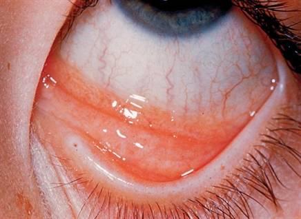 Хламидийный конъюнктивит - фото, симптомы и лечение