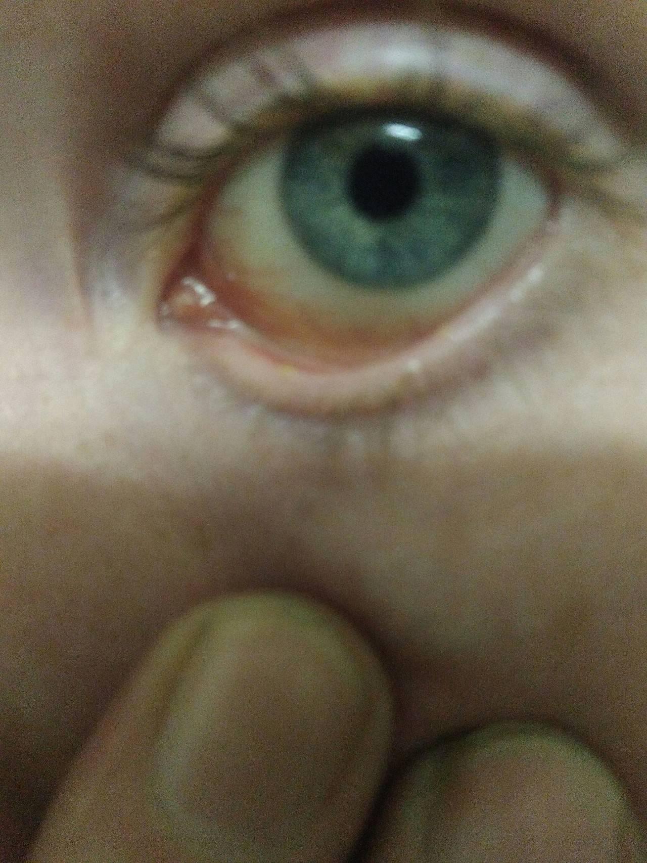 Внутри глаза вскочил прыщ: причины и лечение