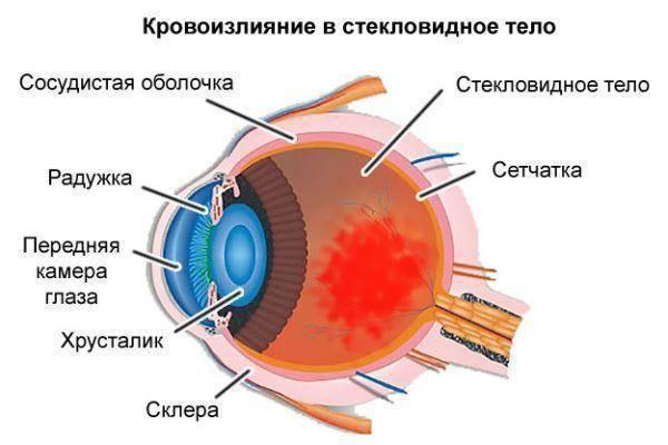Ангиопатия сетчатки глаз по гипертоническому типу у детей, новорожденных и взрослых: что это такое и как лечить