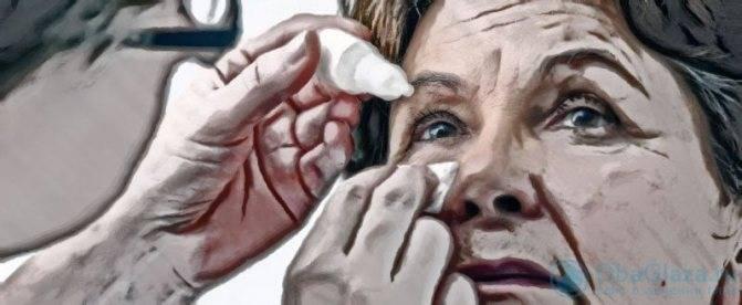 Мейбомит нижнего или верхнего века: лечение, симптомы мейбомиевого блефарита глаз