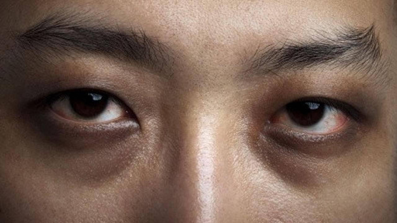 Черные круги под глазами: причины, симптомы и способы избавления — prozreniye.ru
