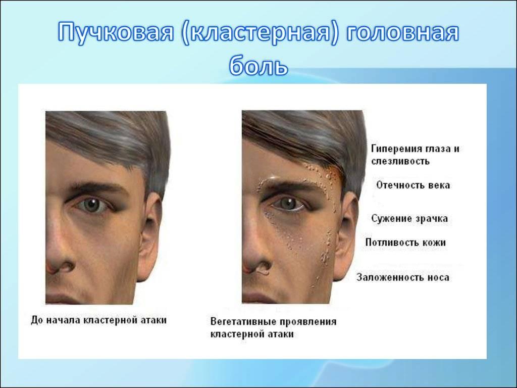 Болит голова и в правом глазу: причины   ким