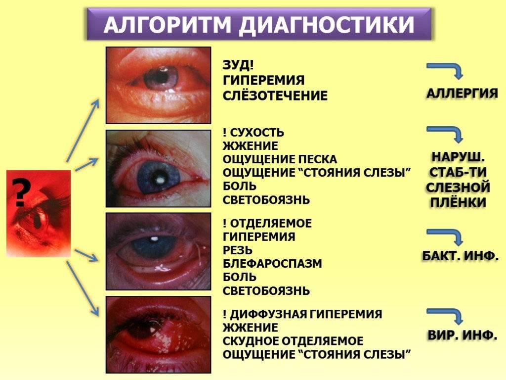 Почему слезятся глаза, и как это лечится