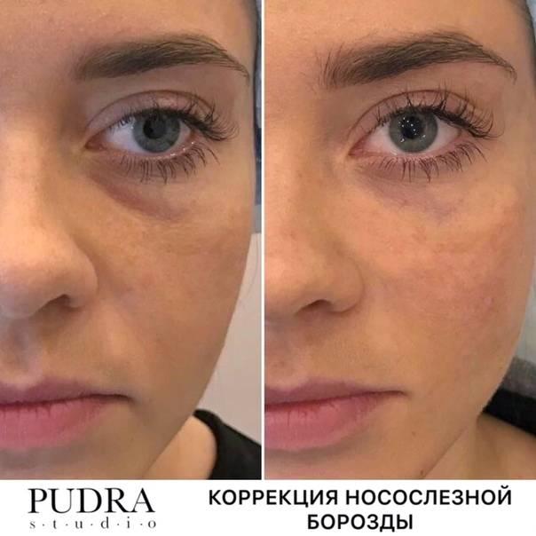 Коррекция носослезной борозды в борьбе со старением кожи - idealplastic.ru