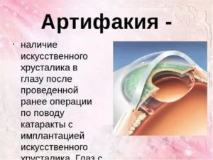 Артифакия глаза: что это, показания и противопоказания, осложнения и виды