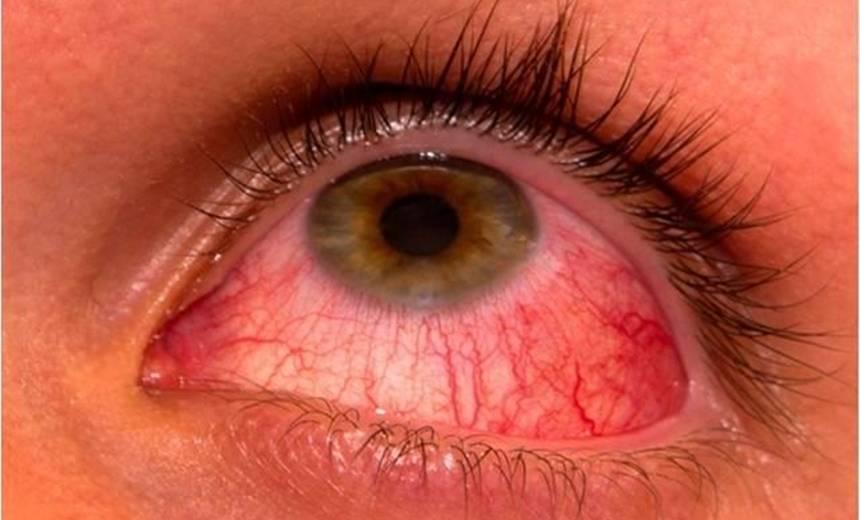 Можно ли вылечить синдром сухого глаза народными средствами?