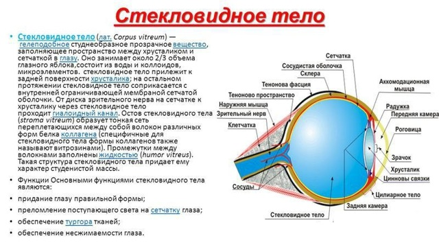 Деструкция стекловидного тела - причины, симптомы, лечение