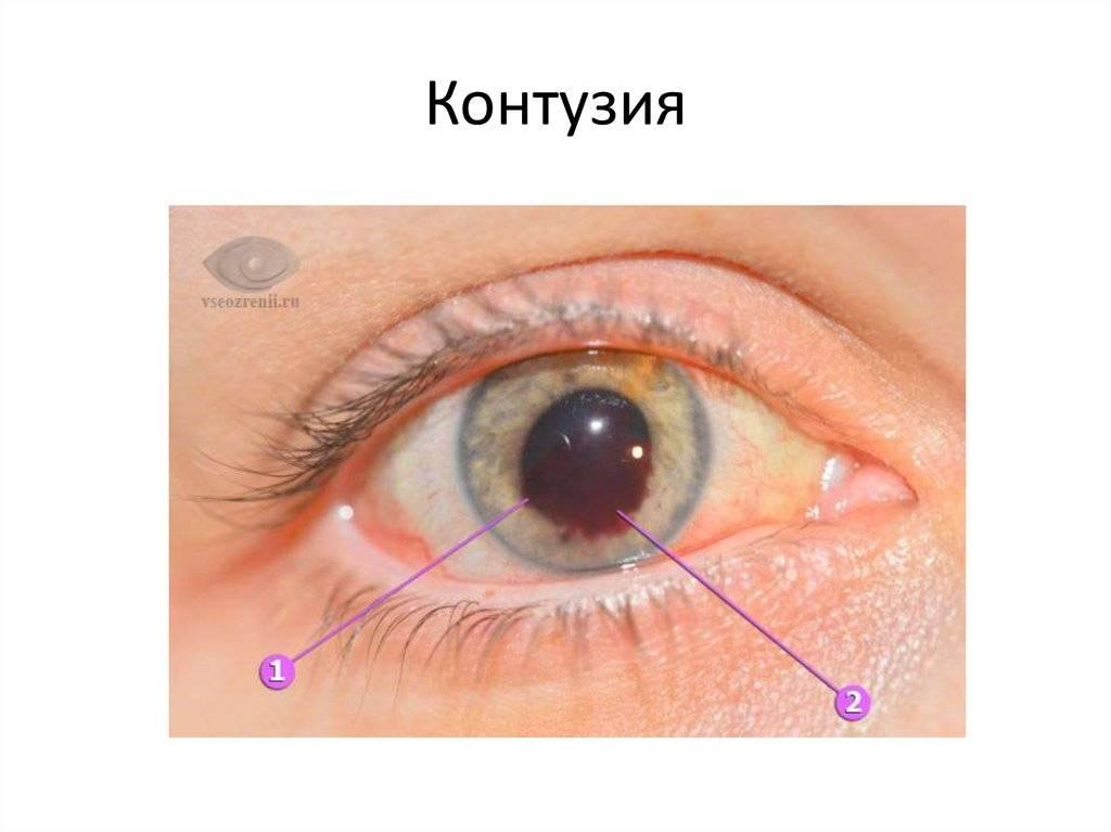 Контузии глаз, признаки, симптомы, лечение.