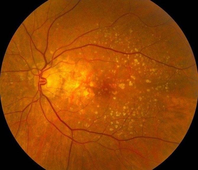 Фоновая ретинопатия и ретинальные сосудистые изменения: причины, лечение