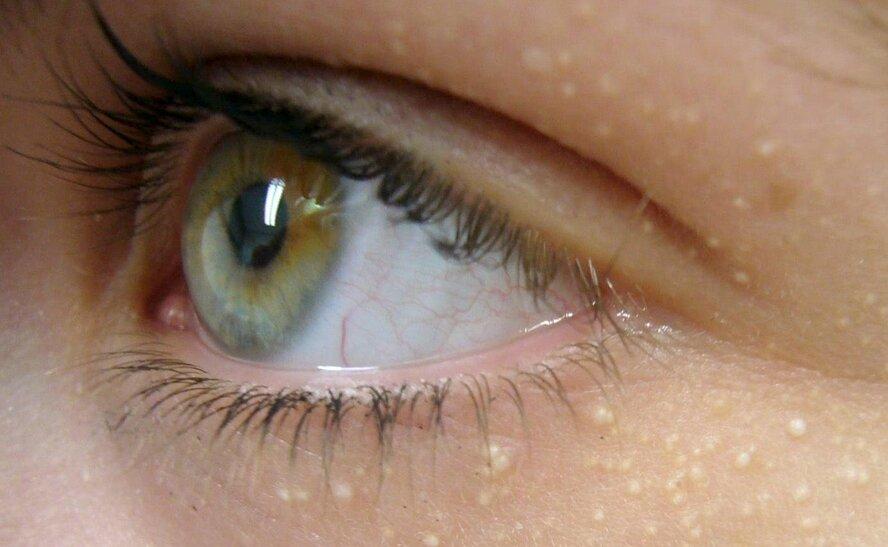 Белые точки вокруг глаз