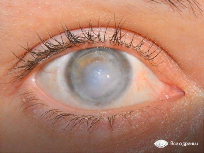 Туман в глазах - что это, причины и лечение