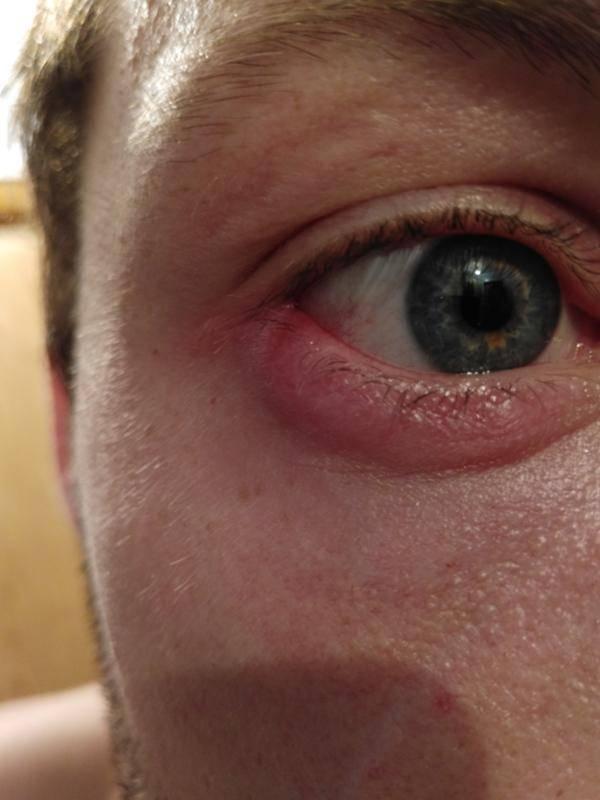 Болит внешний уголок глаза