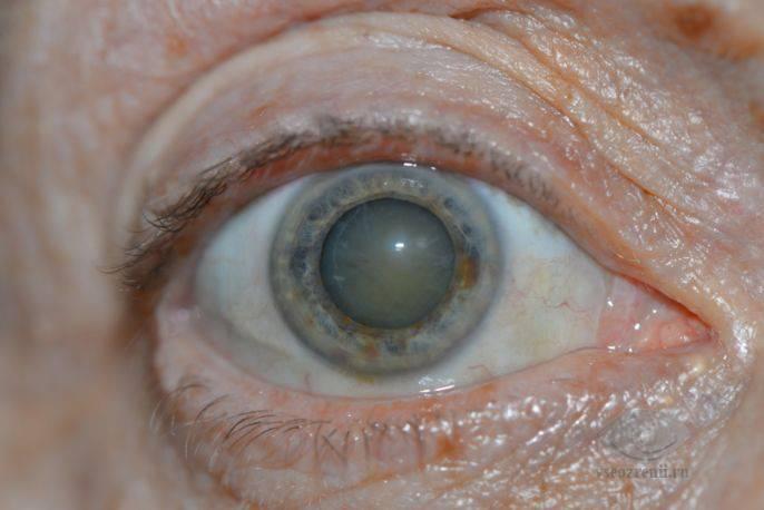 Катаракта: причины, симптомы, лечение и профилактика