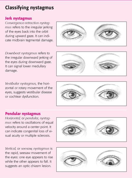 Нистагм глаз: что это такое, симптомы и виды, причины и лечение