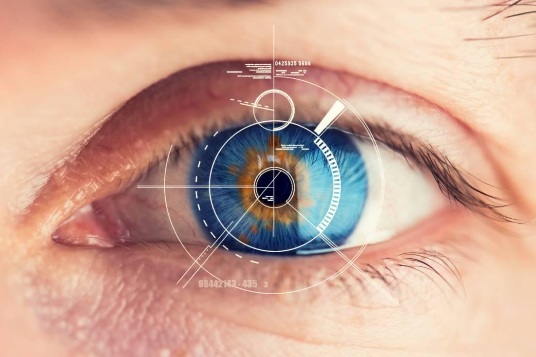 Фемто ласик – операция лазерной коррекции зрения (femto lasik)