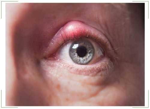 Как вылечить простуду на глазу?