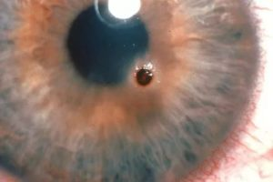 Как вытащить из глаза инородное тело