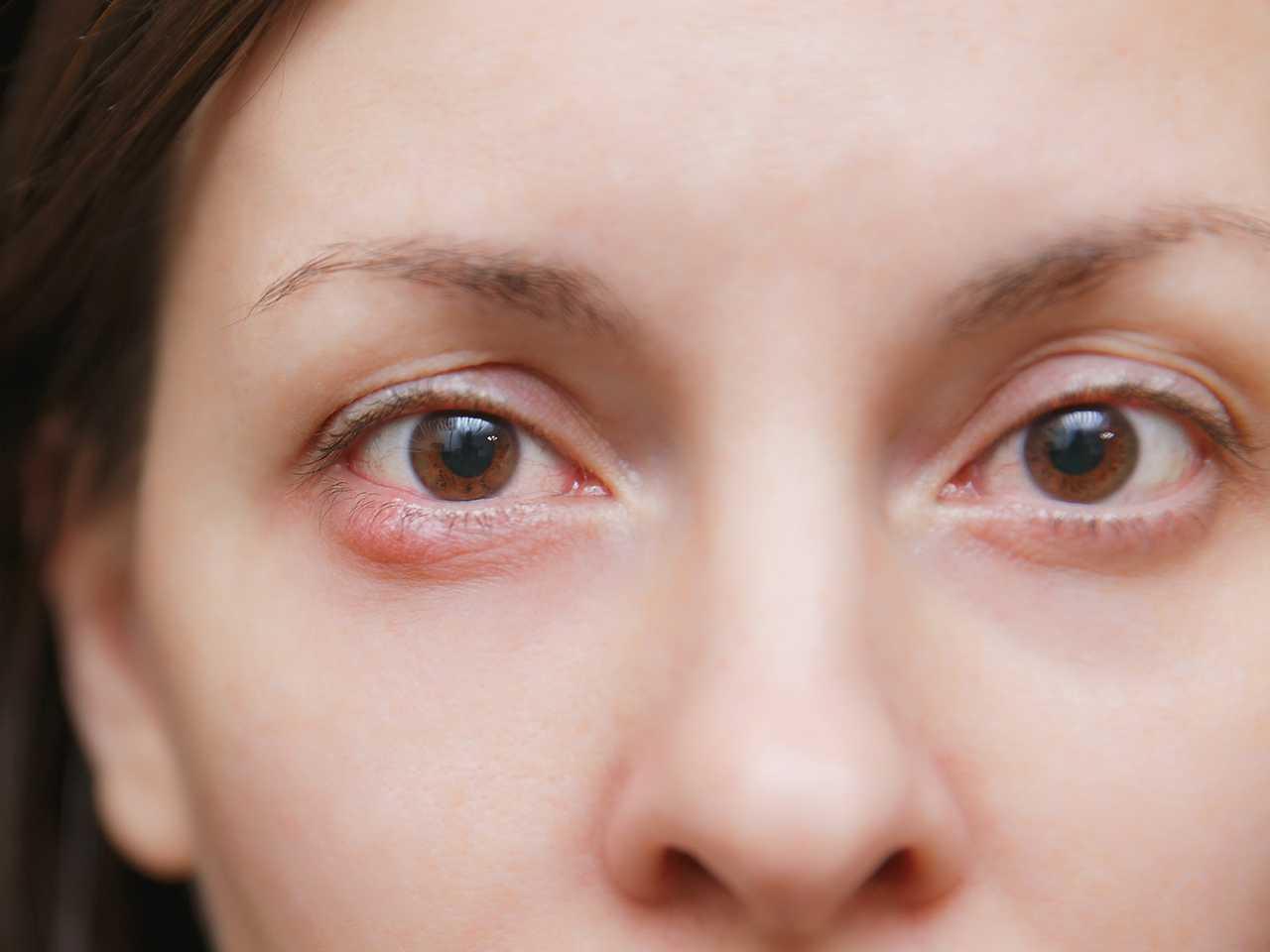 Сохнут глаза в линзах - что делать, какие осложнения могут возникнуть: ощущение песка в глазах, быстро устают глаза